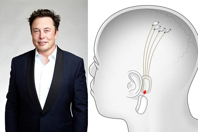 Elon Musk is developing a brain chip to stream music inside your head